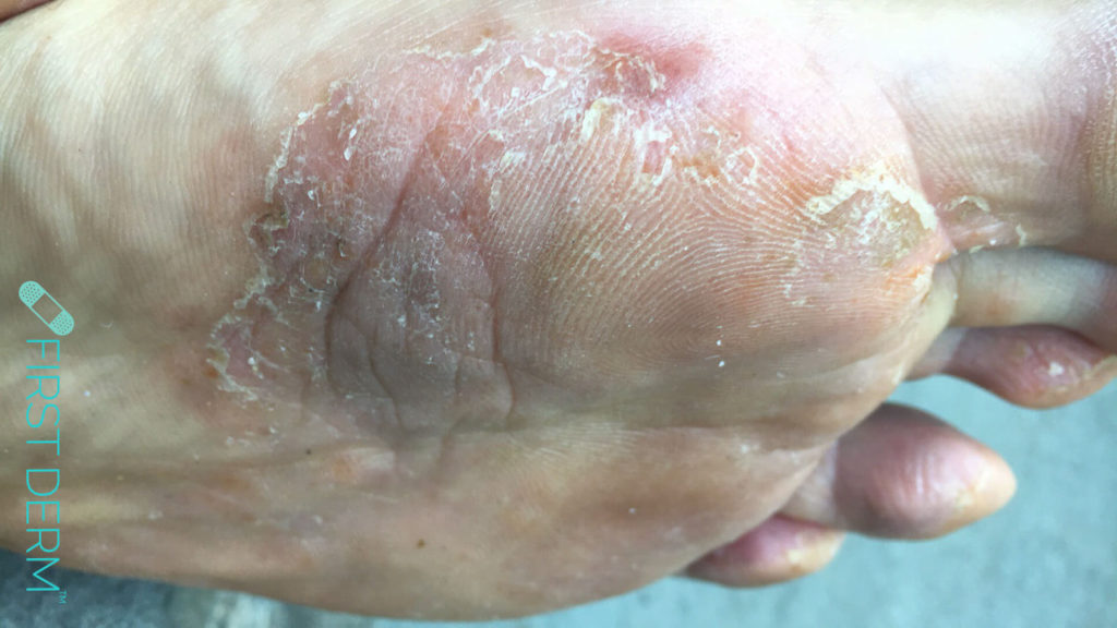 Fotsvamp – Tinea Pedis närbild ICD-10 B35.3