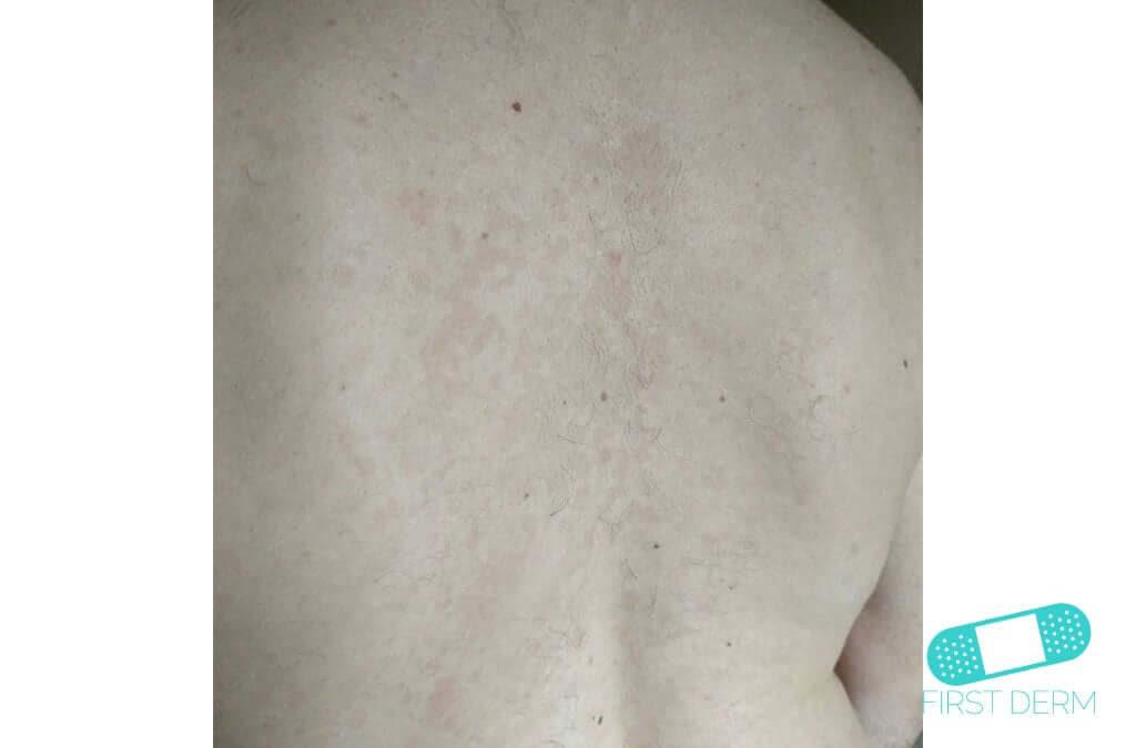 Vita prickar på huden Pityriasis versicolor (tinea verisicolor) (04) rygg [ICD-10 B36.0]