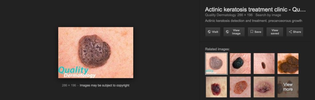 Skin Internet Search compared to Skin Image Search - Actinic Keratosis - Seborrheic Keratosis
