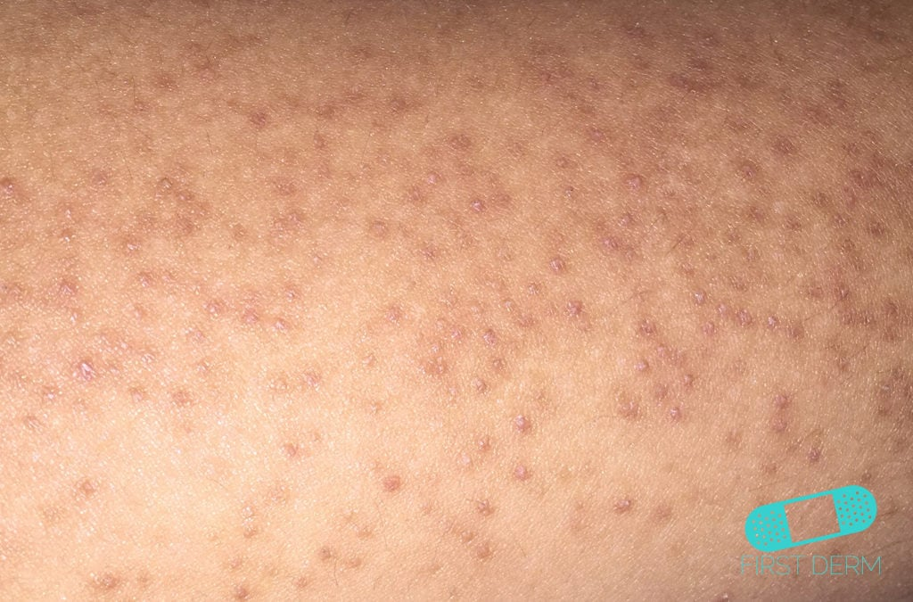 How to Treat the Red Bumps on Your Arms