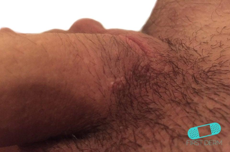 First Derm Genital Wart (1) ICD-10-A63.0
