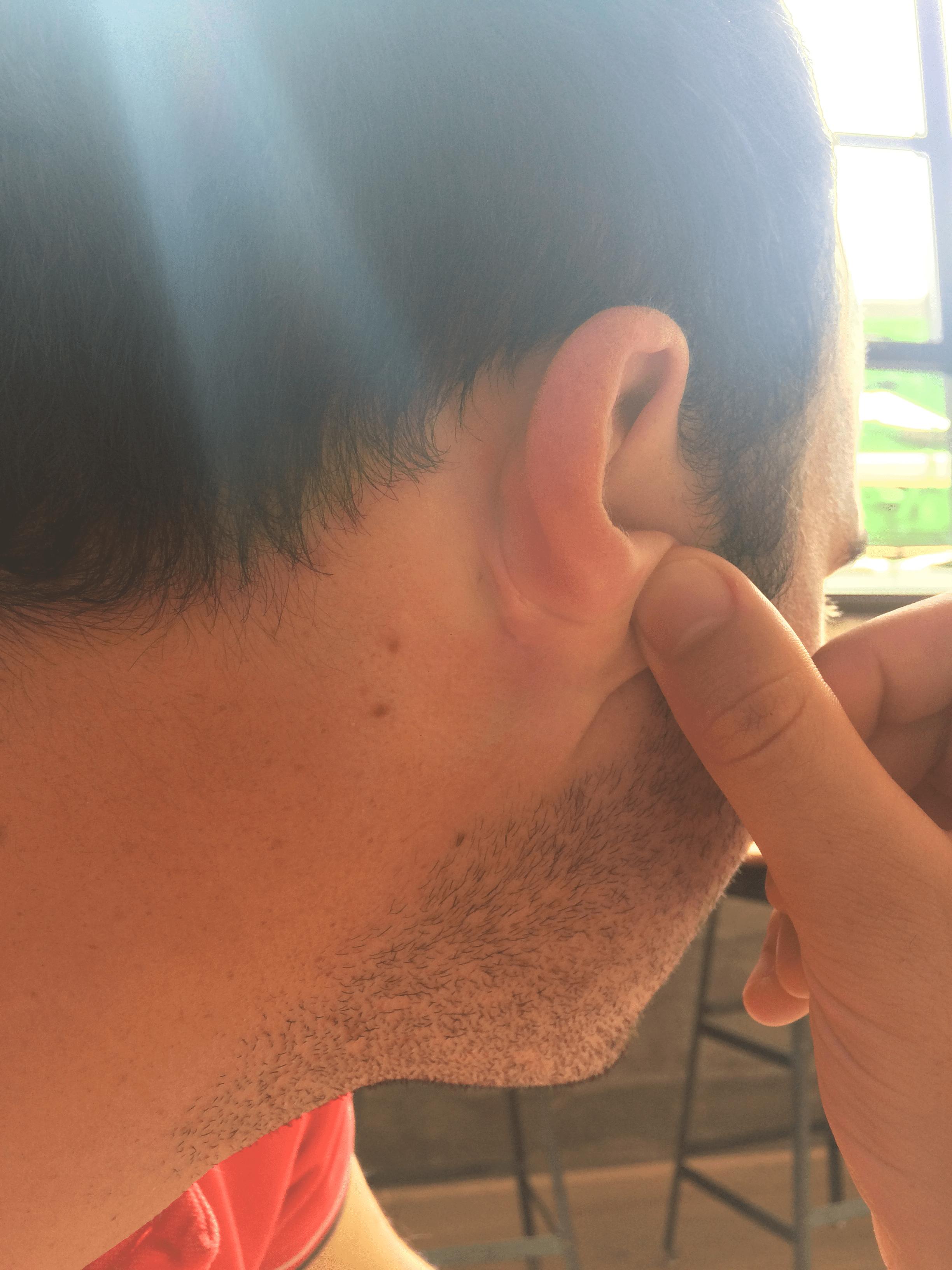 First Derm Eczema After
