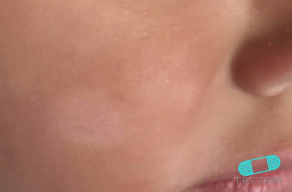 hudsvamp vita fläckar behandling
