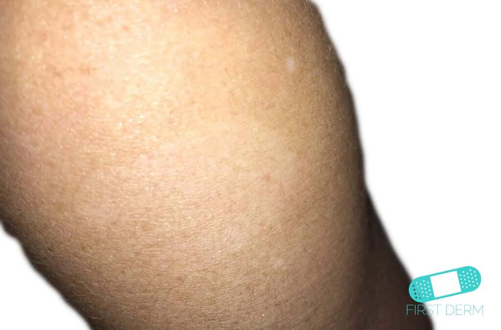 Pityriasis Alba (10) knee [ICD-10 L30.5]