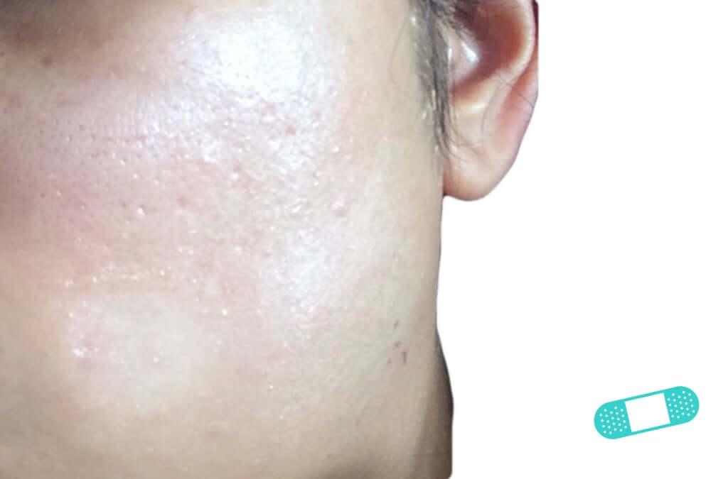 Pityriasis Alba (15) cheek face [ICD-10 L30.5]