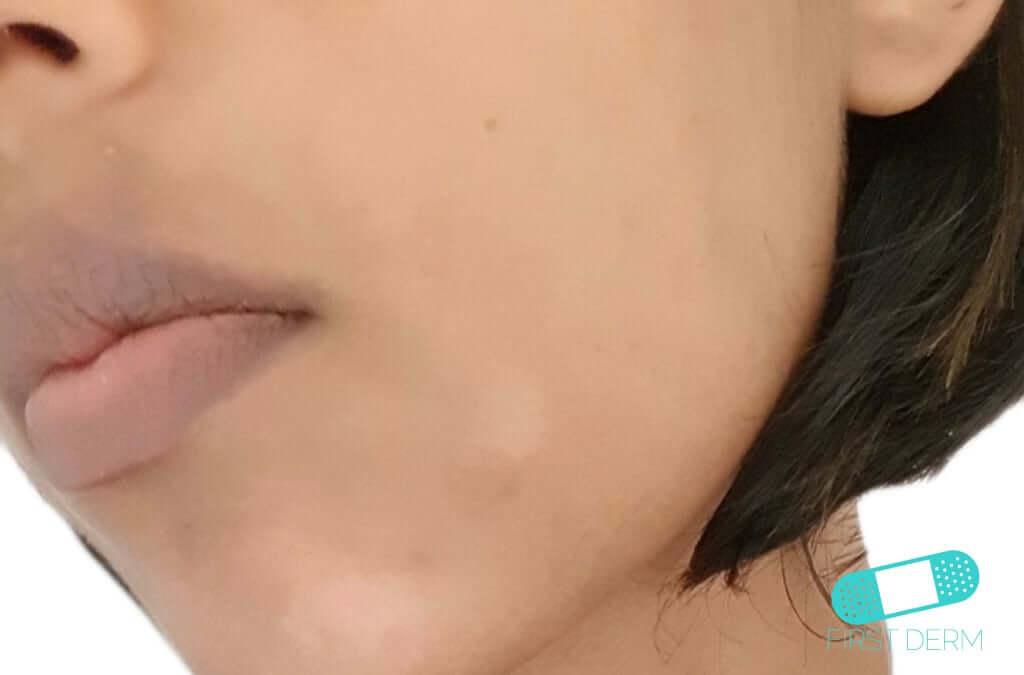Pityriasis Alba (16) cheek face [ICD-10 L30.5]