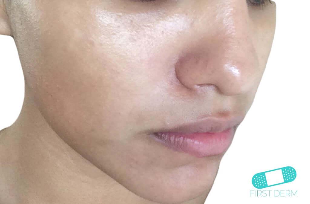 Pityriasis Alba (19) cheek face [ICD-10 L30.5]