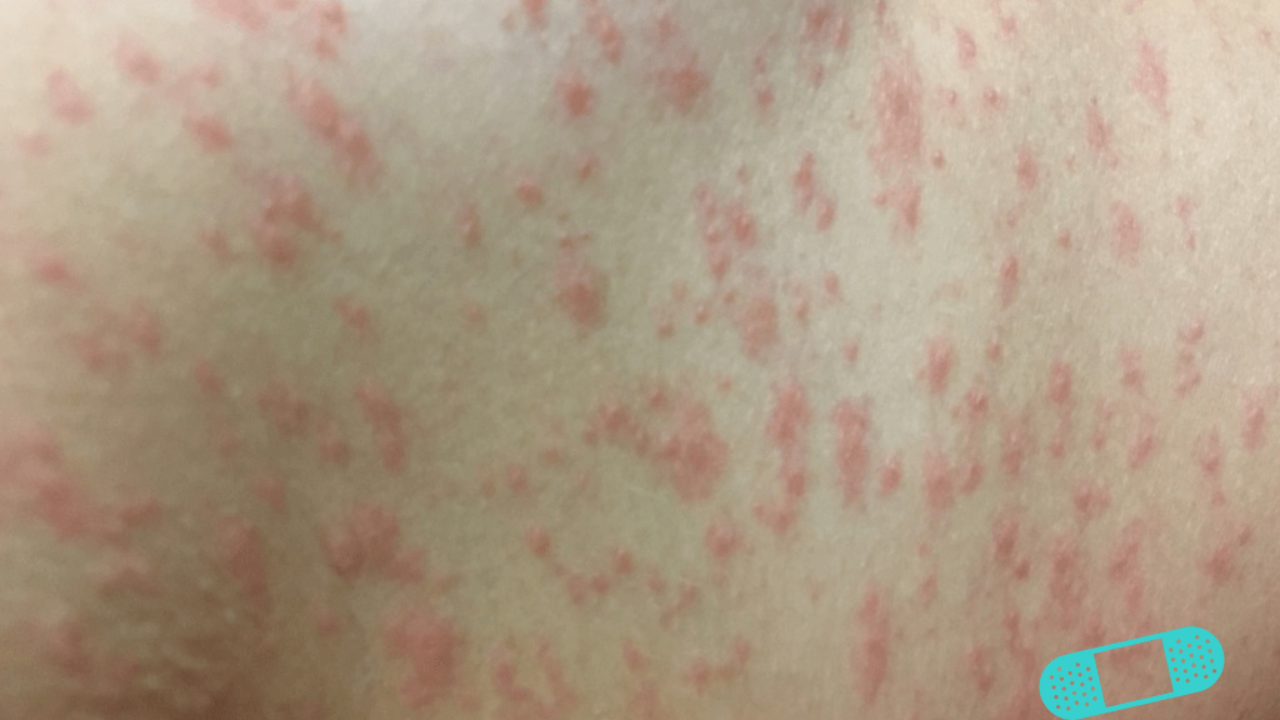 Spots and Rashes Caused by Viruses - Online Dermatology