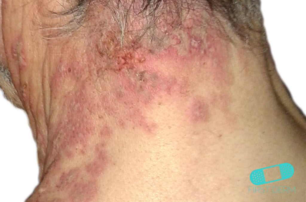 First Derm Herpes Zoster Shingles (12) ICD-10-B02