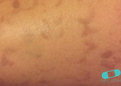 Hyperpigmentation (2) ICD-10-L81.4