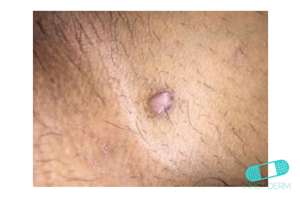 how to get rid of a keloid caused by piercing