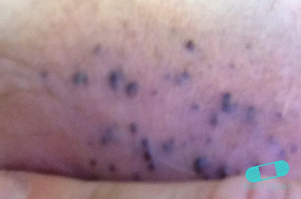 Online Dermatology Angioma
