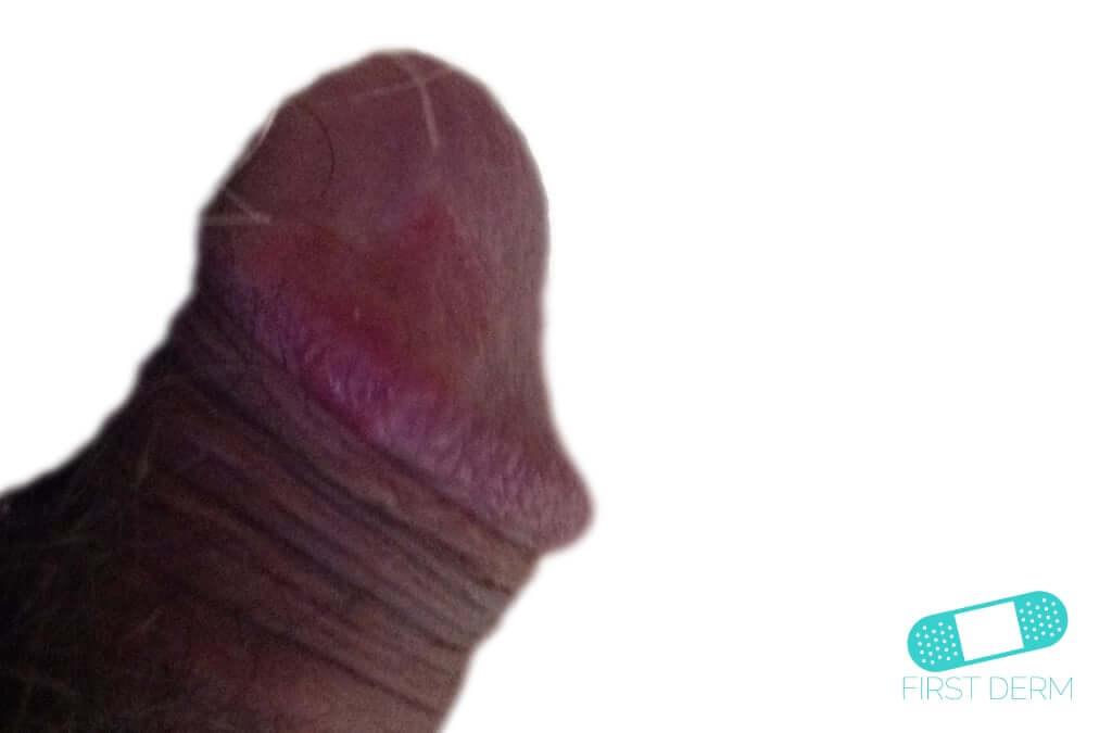 Balanitis (Foreskin Problem) (01) penis [ICD-10 N48.1]