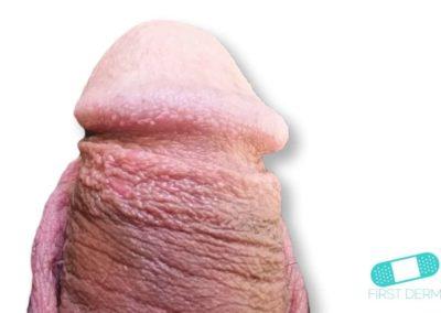 Balanitis (Foreskin Problem) (04) penis [ICD-10 N48.1]