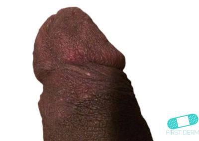 Balanitis (Foreskin Problem) (05) penis [ICD-10 N48.1]