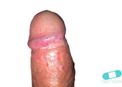 Balanitis (Foreskin Problem) (11) penis [ICD-10 N48.1]