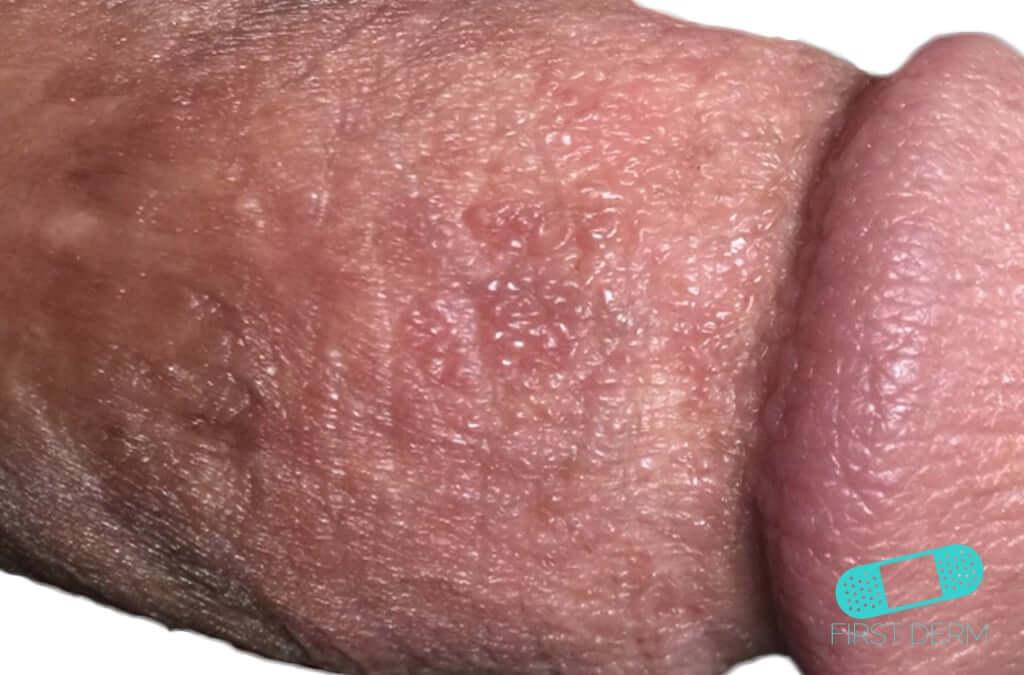 Balanitis (Foreskin Problem) (13) penis [ICD-10 N48.1]