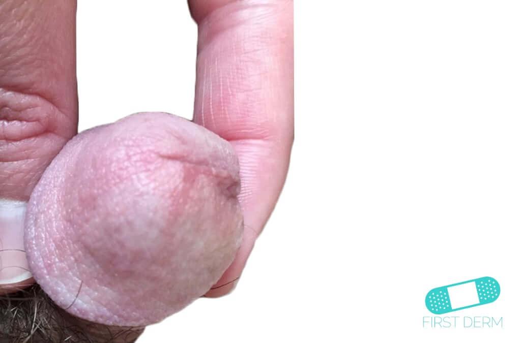Balanitis (Foreskin Problem) (15) penis [ICD-10 N48.1]