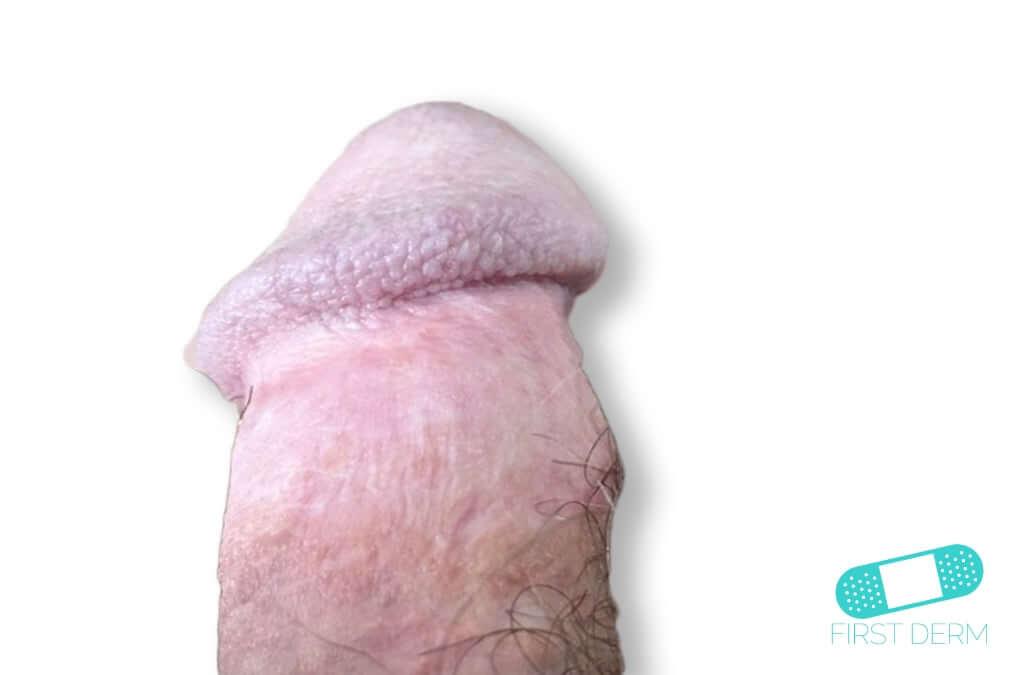 Balanitis (Foreskin Problem) (17) penis [ICD-10 N48.1]