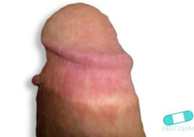 Balanitis (Foreskin Problem) (18) penis [ICD-10 N48.1]