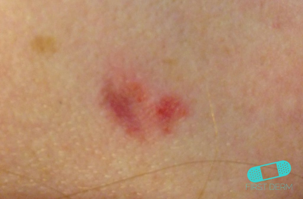 Basal Cell Carcinoma Picture Image on MedicineNet.com