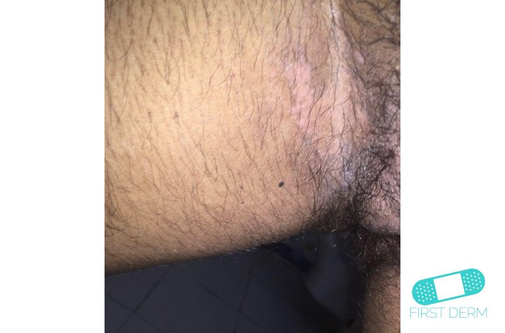 Svampinfektioner Candidiasis (13) ljumsken man ICD-10-B37