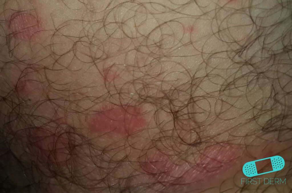 Candidiasis (Cutaneous Candidiasis) (03) skin [ICD-10 L02.91]