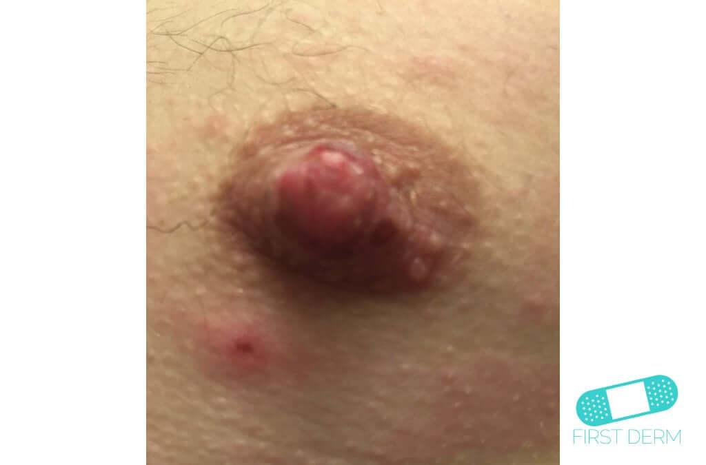 Candidiasis (Cutaneous Candidiasis) (06) nipple [ICD-10 L02.91]