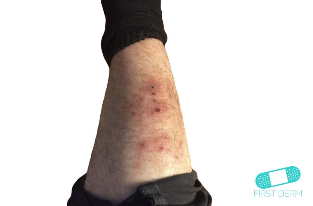 Candidiasis (Cutaneous Candidiasis) (09) leg [ICD-10 L02.91]