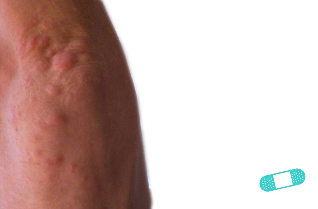 First Derm Contact Dermatitis (16) ICD-10-L25