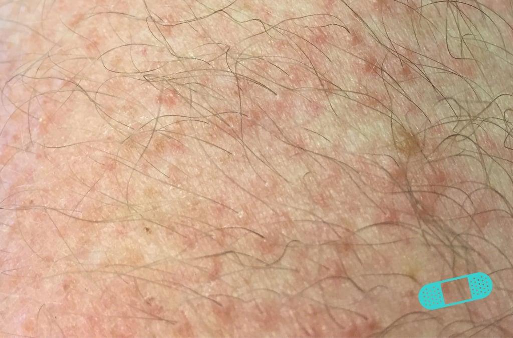 First Derm Contact Dermatitis (18) ICD-10-L25