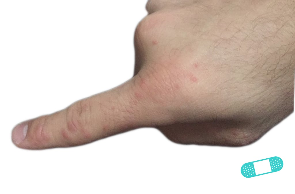 First Derm Contact Dermatitis (13) ICD-10-L25