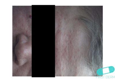 Cradle Cap (Seborrheic dermatitis) (03) front face [ICD-10 L21.0]