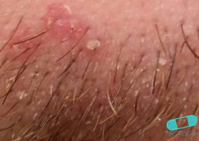 Cradle Cap (Seborrheic dermatitis) (16) skin [ICD-10 L21.0]