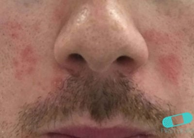 Seborrheic dermatitis face (17) nose [ICD-10 L21.0]