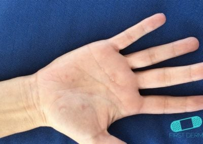 Dyshidrotic eczema hand (11) ICD-10-L30.1