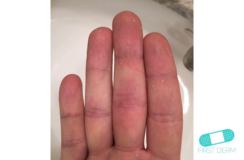 Online Dermatology - Dyshidrotic eczema (dyshidrosis)
