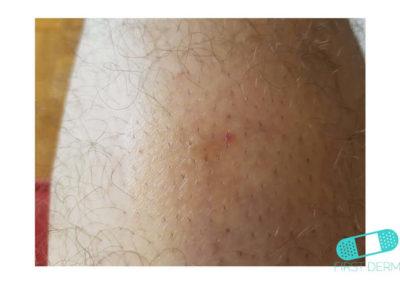 Dermatofibroma (07) thigh [ICD-10 D23.9]