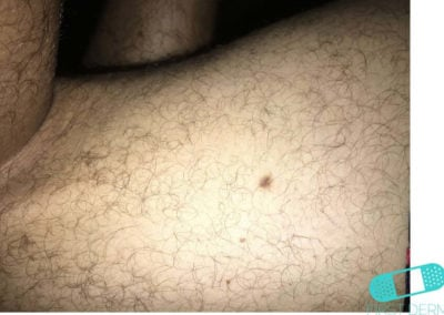Dermatofibroma (10) skin [ICD-10 D23.9]