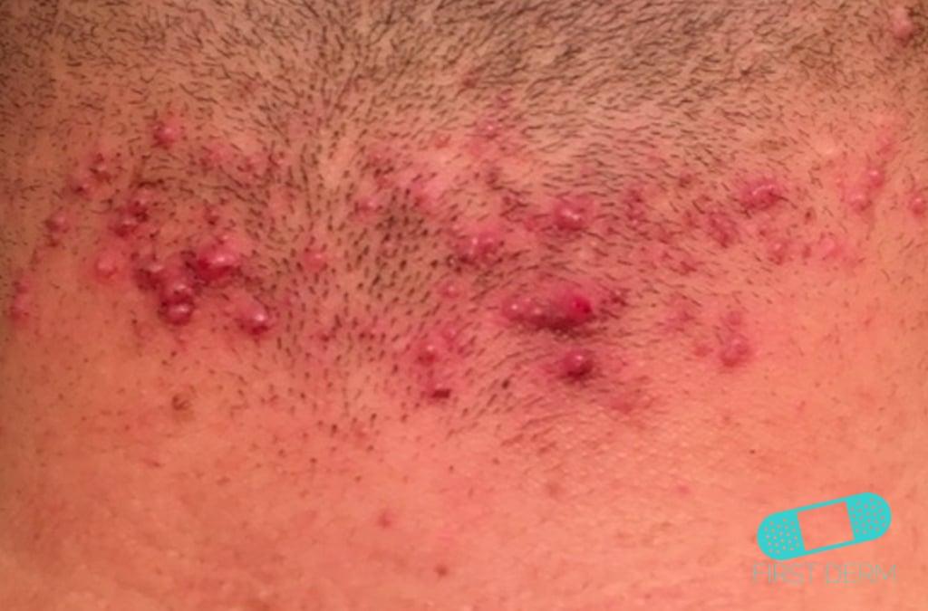Online Dermatology Folliculitis Barber S Itch