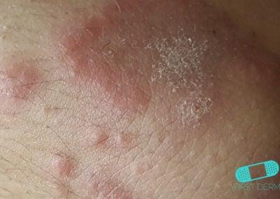 Infección por Hongos (01) mama [ICD-B35.9]