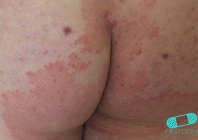 Infección por Hongos (03) nalgas [ICD-B35.9]