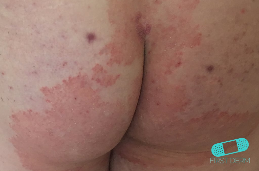 skavsår mellan skinkorna behandling