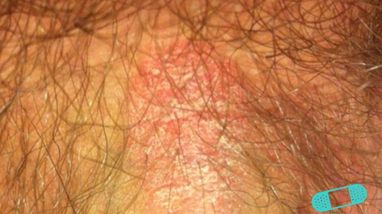 descamacion de la piel zona genital