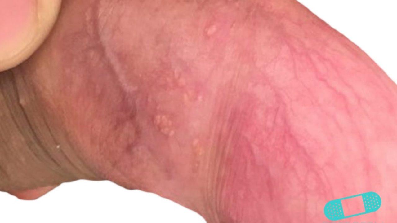 Tratamiento para granos rojos en el glande