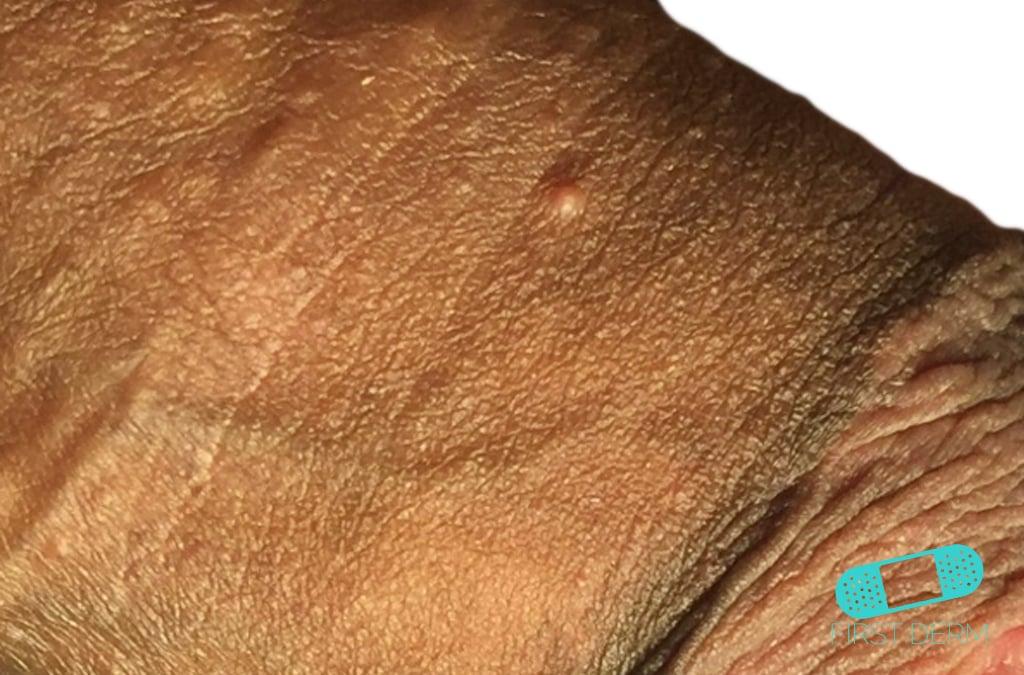 Online Dermatology - Fordyce Spots (Fordyce Granules)