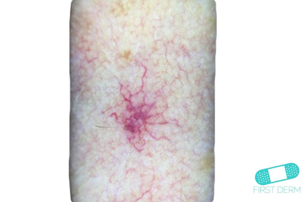 Angioma Online Dermatology