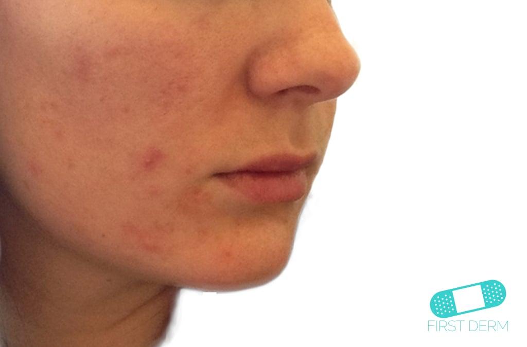 Online Dermatology - Acne Vulgaris (Acne)