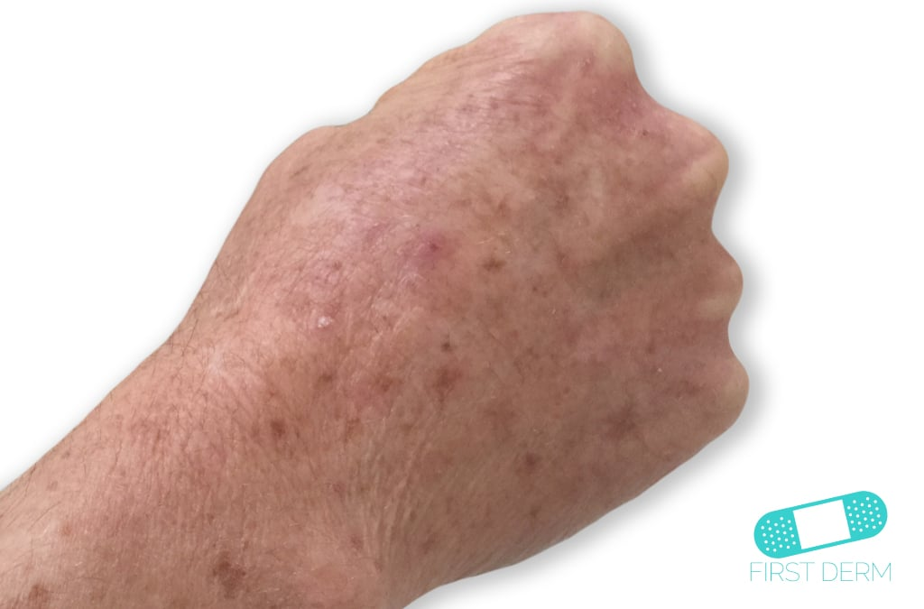 First Derm Actinic keratosis (2) ICD-10-L57.0