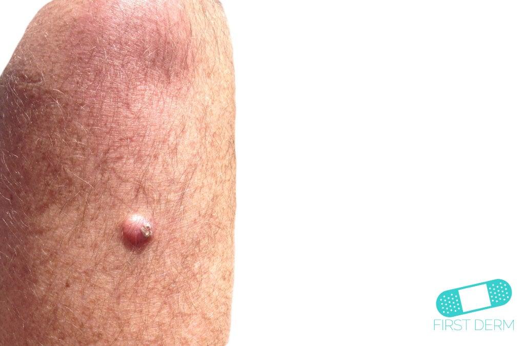 hård knöl under huden